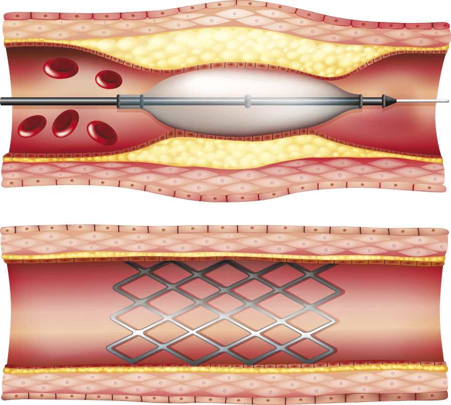 Percutaneous Coronary Intervention Pci on high blood pressure diagram